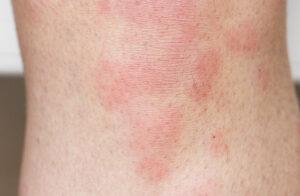 帯状疱疹の皮疹紅斑